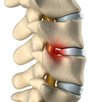 Disc herniated